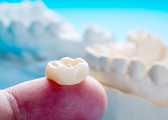 Dental Crowns & Bridges Photo